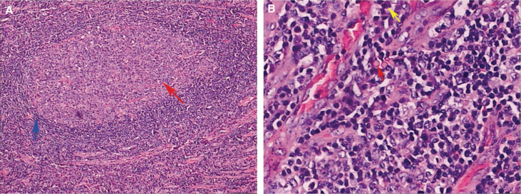 Unicentric Castlemans Disease Presenting With Growth Retardation