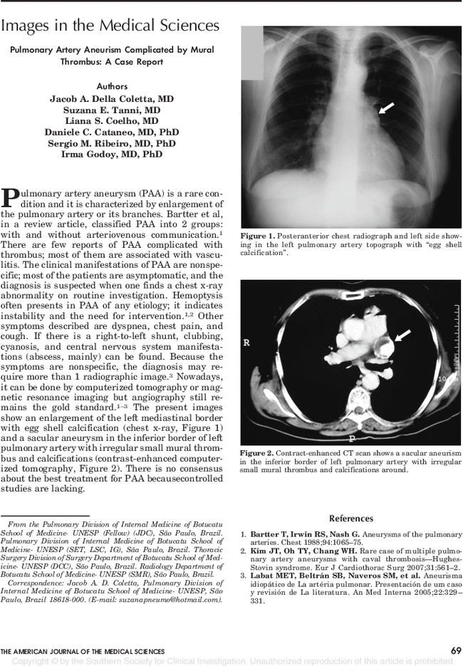 Pulmonary Artery Aneurism Complicated by Mural Thrombus: A Case
