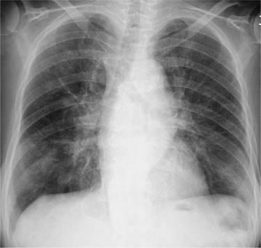 Radiographic Appearance Of Bronchiolitis Obliterans